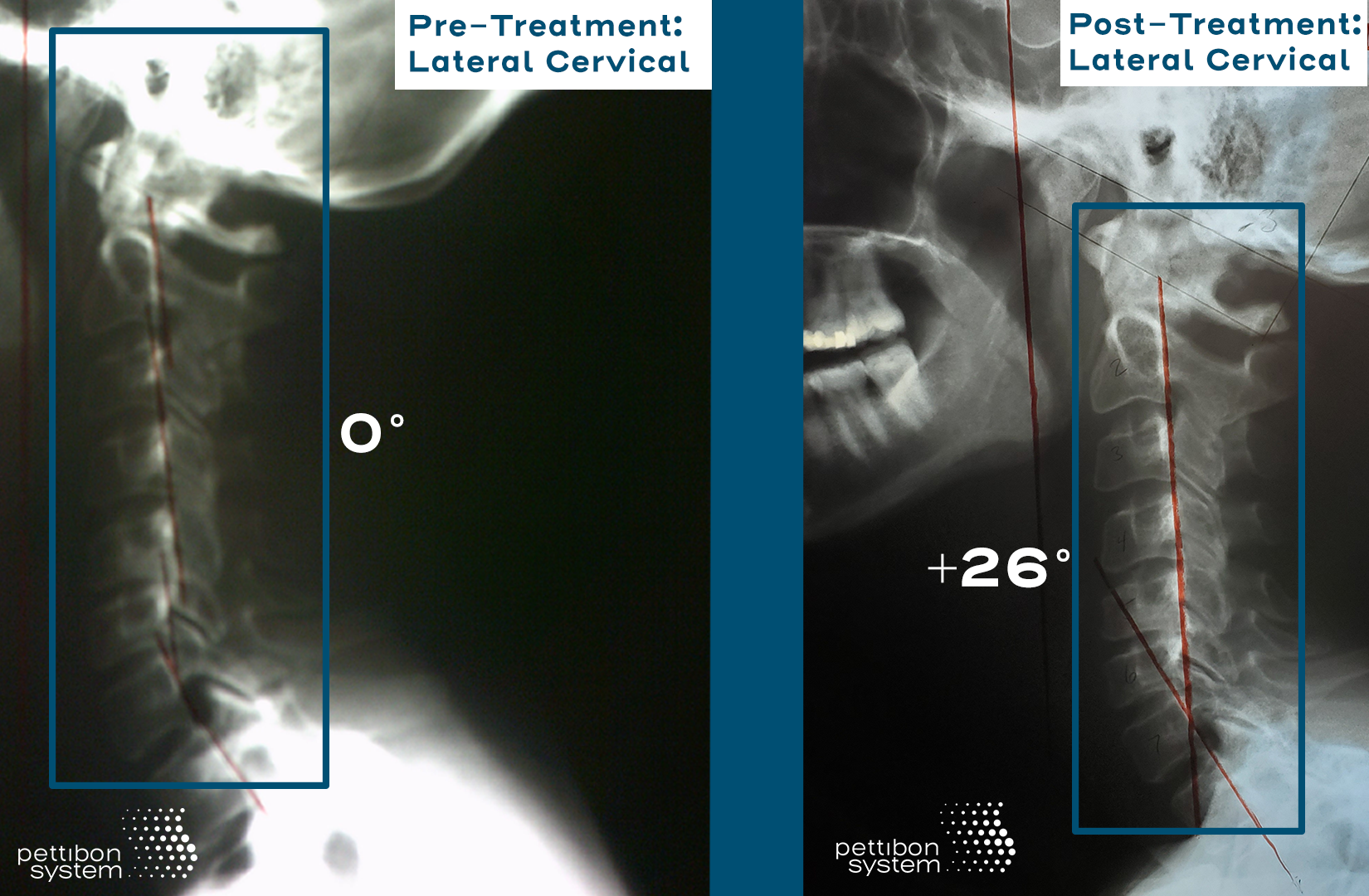 Lisa's lateral cervical X-ray's Pre and Post treatment showing her improvement.