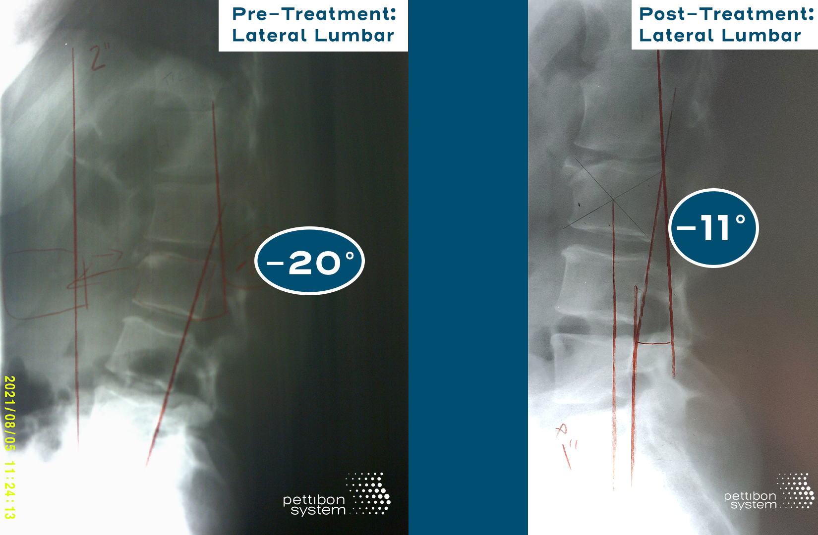 Side by side X-rays showing the improvement of Lisa's spine after using The Pettibon System.